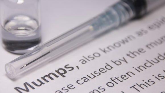 mumps outbreak