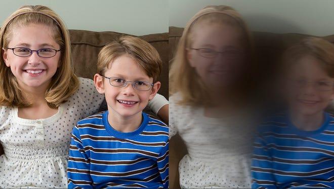 macular-degeneration-side-by-side-comparison.jpg