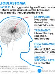 072017-McCain-glioblastoma-tumor