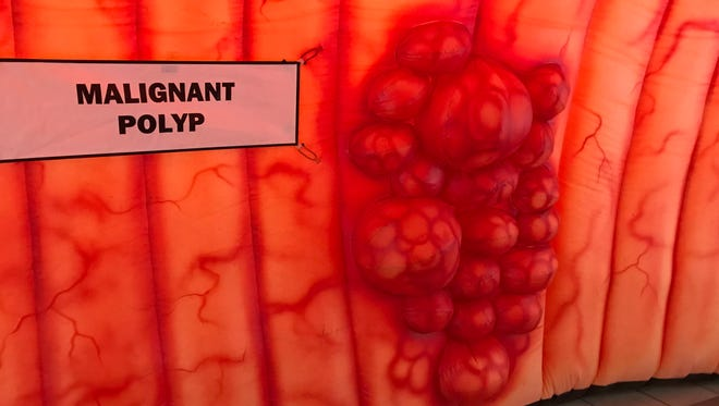 An example of a cancerous mass is attachable to the wall of an inflatable colon at the Central Library of Rochester and Monroe County.
