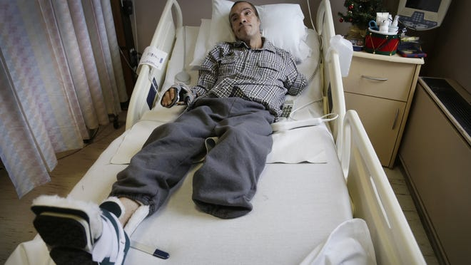 Steve Constantine lost his left ear, left arm and left leg below the knee during the attack by a dozen pit bulls or pit bull mixes.
