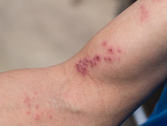 UVM Medical Center - Bumps caused by shingles on skin