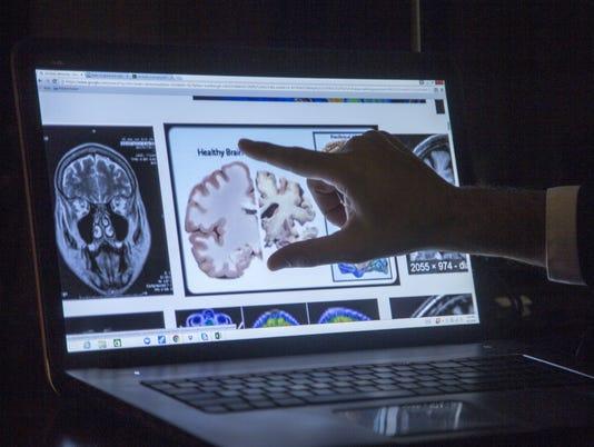 Living with Alzheimer's: Harvey Boyd