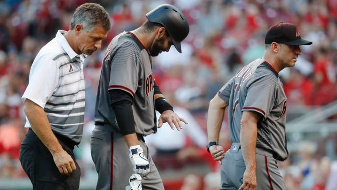 Diamondbacks hitter J.D. Martinez, center, comes out of the game after being hit in the hand by the ball while swinging at a pitch against the Reds in Cincinnati.