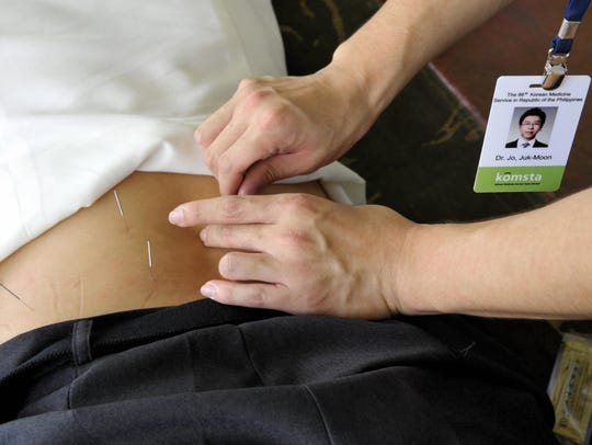 Dr. Jo Juk-Moon inserts acupuncture needles into the
