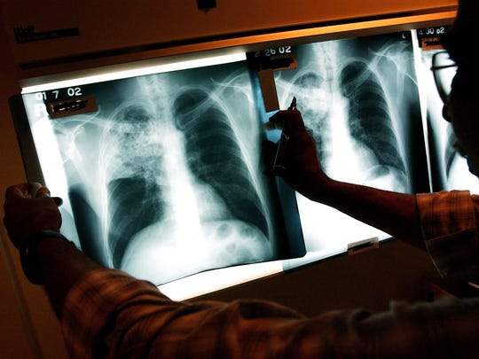 A doctor examines the x-rays of a tuberculosis in this file photo.
