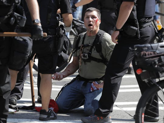 A man who was protesting with Patriot Prayer and other groups supporting gun rights is treated for an injury during a rally and counter-protest, Saturday, Aug. 18, 2018, near City Hall in Seattle.