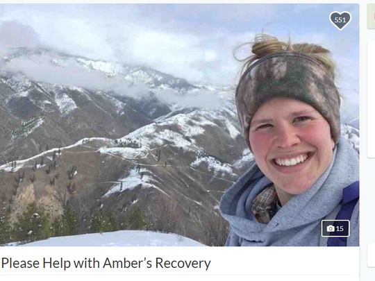 Amber Kornak was mauled by a grizzly bear while working her 'dream job' in the Cabinet Mountains in Montana. She had to walk two miles with a fractured skull to find help after fighting off the bear.