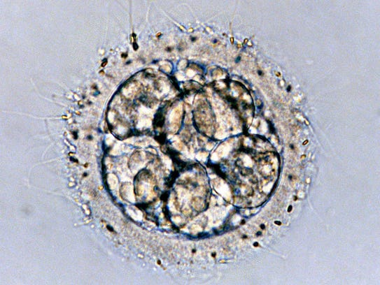 This is a microscopic view of an embryo, surrounded