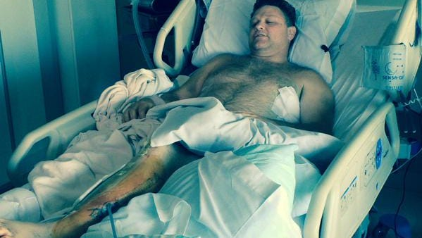 Matt L'Hommedieu recovering in his hospital bed at PeaceHealth Southwest Medical Center.