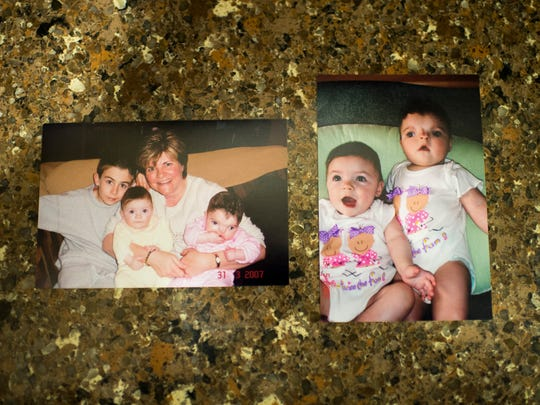 Family photos showing Maryelena Baldassarre when she was a baby. Maryelena was born with a facial deformity, and has endured a dozen surgeries at the Children's Hospital of Philadelphia.