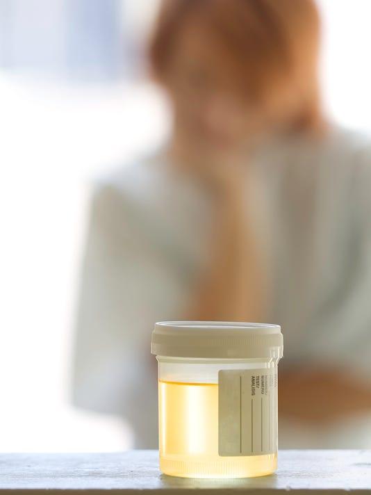 Urine Sample - Drug Test
