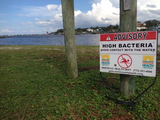 A sign at Sandsprit Park in Martin County asks visitors to avoid contact with water after high levels of bacteria were found there Thursday, Sept. 21, 2017, in the wake of Hurricane Irma.