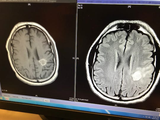 Side-by-side MRIs shows that Shane Gentry's brain tumor