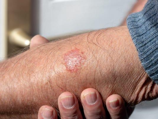 636612826222677945-5.7.18-eczema.jpg