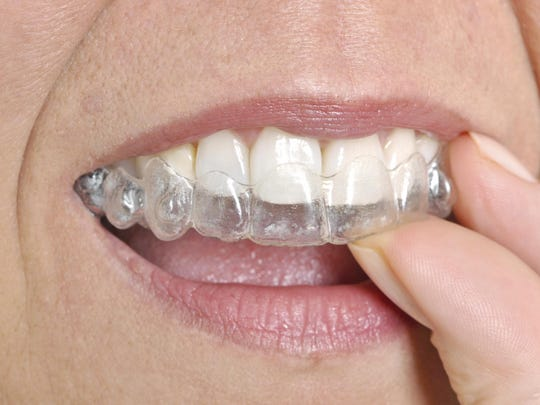 Invisible braces are popular but more expensive than traditional braces. While they are removable, success is dependent up the patient wearing nearly full time.