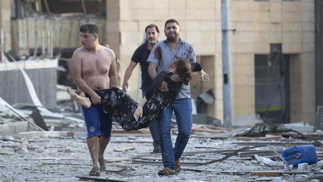 Wounded people are evacuated after a massive explosion in Beirut, Lebanon, Tuesday, Aug. 4, 2020. Massive explosions rocked downtown Beirut on Tuesday, flattening much of the port, damaging buildings and blowing out windows and doors as a giant mushroom cloud rose above the capital. Witnesses saw many people injured by flying glass and debris.
