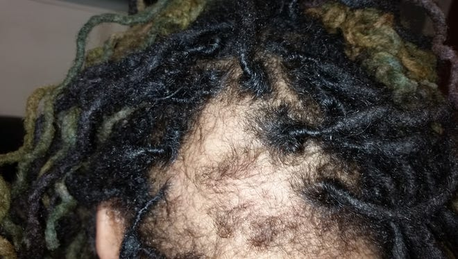 Mikera Manning, 34, secretary of New Era Detroit, said a police officer ripped out her hair locks on the back of her head on June 7, 2016.