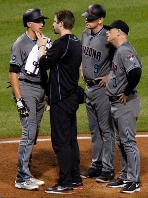 Nick Ahmed is checked by a team trainer as third base coach Matt Williams and manager Chip Hale look on after Ahmed was hit by a pitch from Pittsburgh Pirates relief pitcher Arquimedes Caminero.