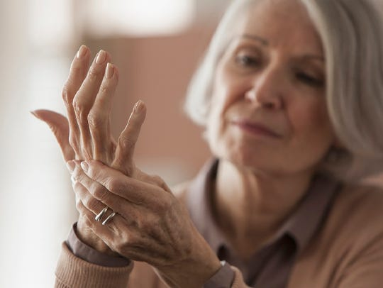 Arthritis is not just an ailment affecting retirees