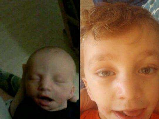 Wyatt Geers has undergone 14 surgeries to help his