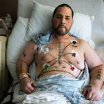 Juan Mendez of Camden shows his scars as he recovers from a Dec. 16 heart and liver transplant at Temple University Hospital Tuesday, Jan. 19 in Philadelphia.