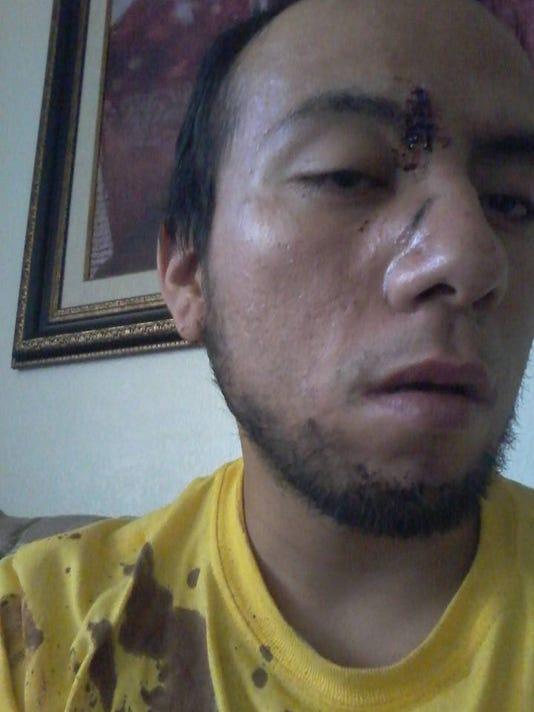 635974586580699530-Nikolas-injury.jpg