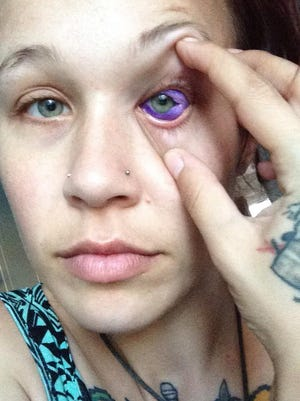 "Catt Gallinger, a pet nutritionist and aspiring model from Canada, had to remove purple ink from her eye after her scleral tattoo ""didn't work out as planned."""