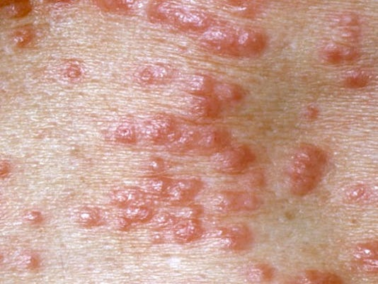 scabies_skin_infection