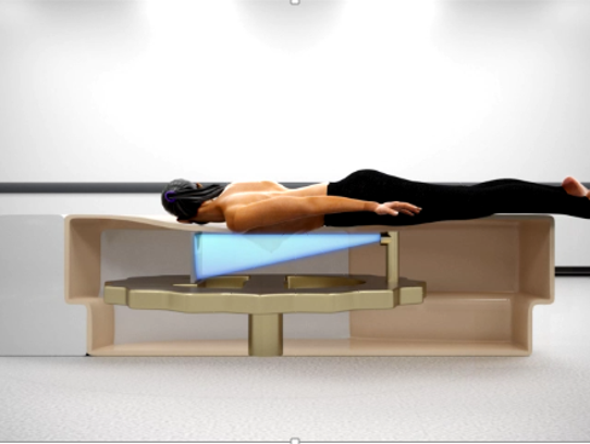 A diagram of how a patient is placed on the Koning