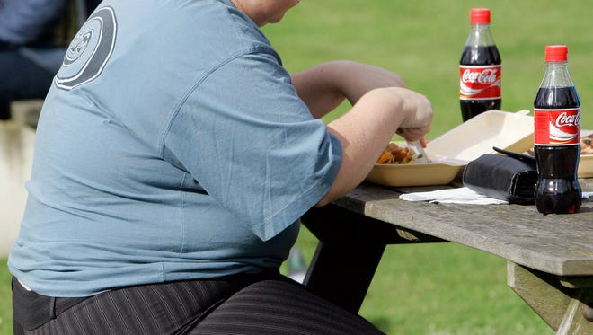 Obesity has serious heath consequences