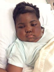 Chika had an experimental procedure at Sloan Kettering Hospital in October 2015. Steroids to reduce brain swelling caused a puffy appearance.