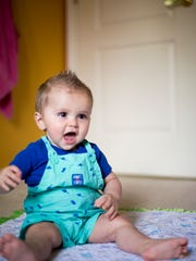 Ryan Norton, 11 months old, was diagnosed with a rare