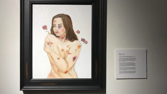 """Beauty from Bruises"" artwork by Capri."