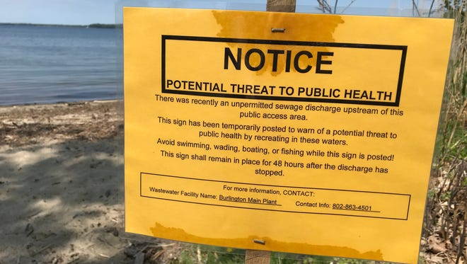 A sign on Blanchard Beach at Oakledge Park warned Burlington beach-goers on Thursday, May 24, 2018, that a sewage spill has temporarily closed the area for recreational activities. Beach closures returned after discharge of storm and wastewater in June that were partially blamed on the city's breweries.