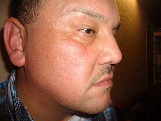 Juan Davila (pictured) declined medical attention at the scene but Robstown officers noted his injuries with photos and wrote he had  bruising to his right eye, redness, and swelling throughout his face in their reports.
