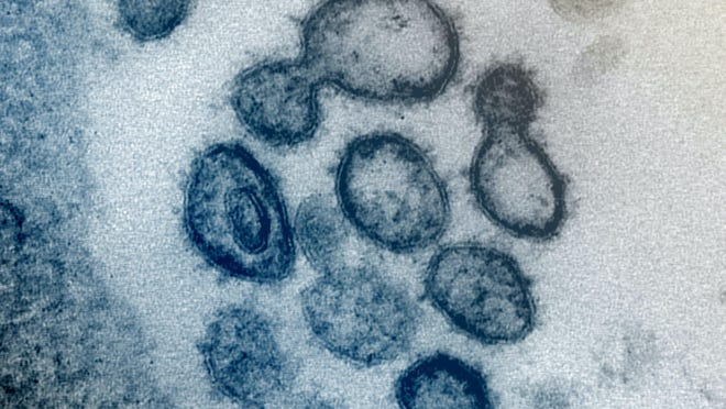 This undated electron microscope image made available by the U.S. National Institutes of Health in February 2020 shows the Novel Coronavirus SARS-CoV-2. Also known as 2019-nCoV, the virus causes COVID-19. The sample was isolated from a patient in the U.S. Dozens of research groups around the world are racing to create a vaccine as COVID-19 cases continue to grow.