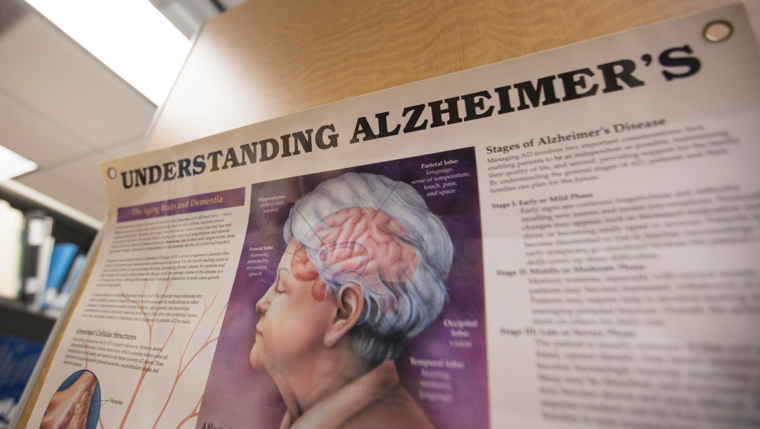 Alzheimer's disease papers