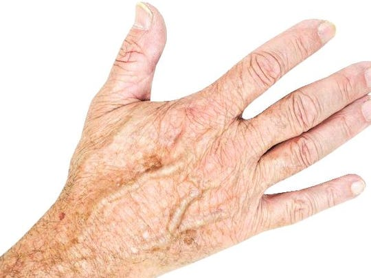 Research the various methods of treating age spots.