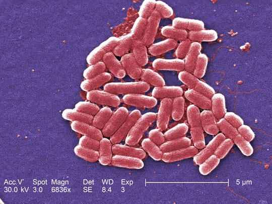 A microscope's image of E. coli (Escherichia coli), bacteria the Centers for Disease Control and Prevention say are found in the environment, foods and human and animal intestines.