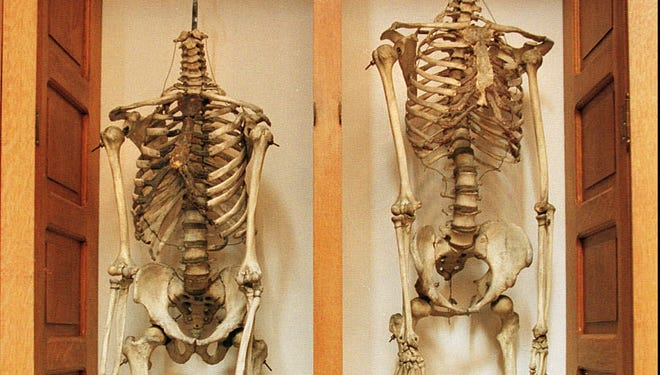Real female, left, and male skeletons on display at the Indiana Medical History Museum.