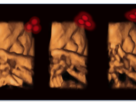 A 4-D ultrasound shows a fetus tracking a stimulus