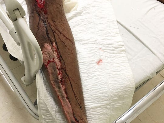 Jason Enwere of Toronto was robbed and severely beaten by a taxi driver and passenger after he hailed a cab back to the all-inclusive resort where he was staying in Mexico.
