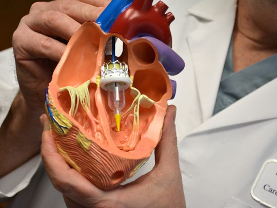 Dr. Paul Burns, Chairman of Surgery at Deborah Heart and Lung Center, holds a model heart depicting a transcatheter aortic valve replacement.