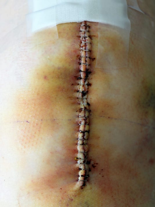 Surgical Scar