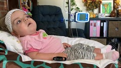 Baby with rare disease dies on Easter