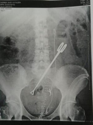 "This photo of an X-ray image of a pair of forceps was included as ""Exhibit A"" in a lawsuit filed by a woman who claims an 8-inch pair of forceps were left in her during surgery at Shasta Regional Medical Center."