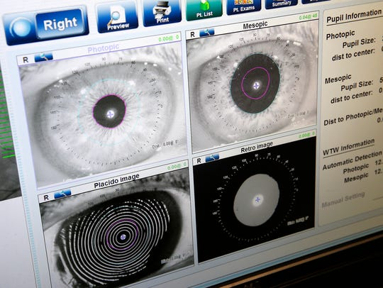 Images of an eye made during an examination are shown