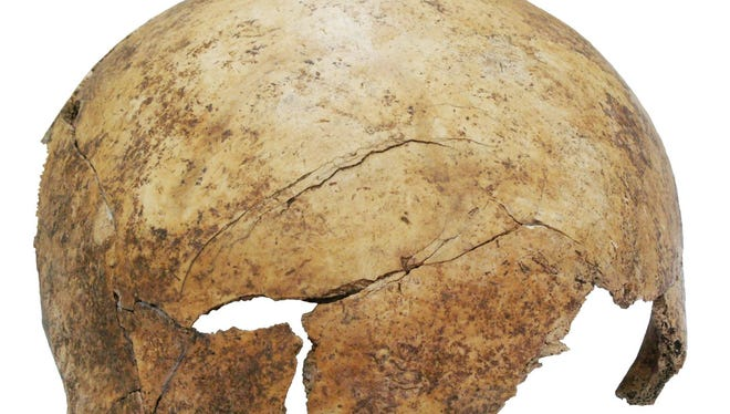 This photo shows the cranial injury in the frontal bone of someone believed to be 8 years old, killed in a massacre 7,000 years ago in what is now Germany.
