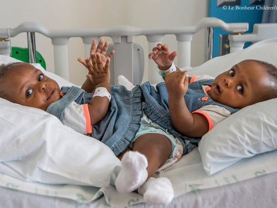 A team of pediatric surgeons and specialists at Le Bonheur Children's Hospital separated 12-month-old  conjoined twin girls, Miracle and Testimony Ayeni during a complex, 18-hour procedure. The Ayeni family from Nigeria has spent the past five months in Memphis at Le Bonheur as surgeons prepared for surgery.